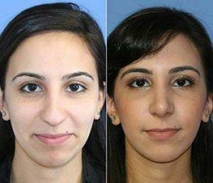 Photos patientes avant après rhinoplastie